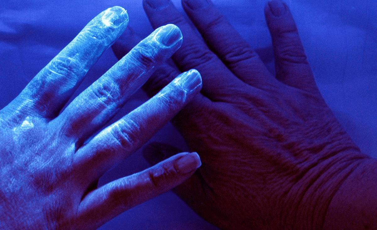 """""""كائنات حية"""" تعيش في جسم الإنسان ترتبط بسرطان خطير"""