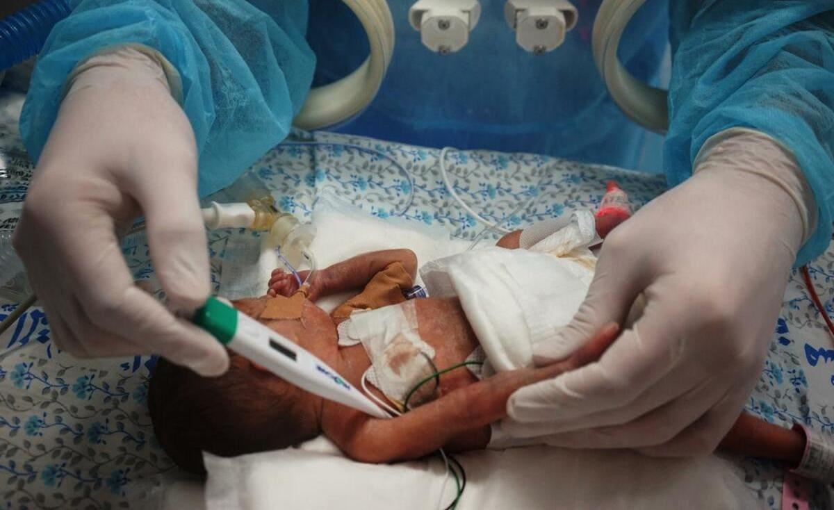 في غزة.. ولادة أصغر مولود بوزن (600) غم