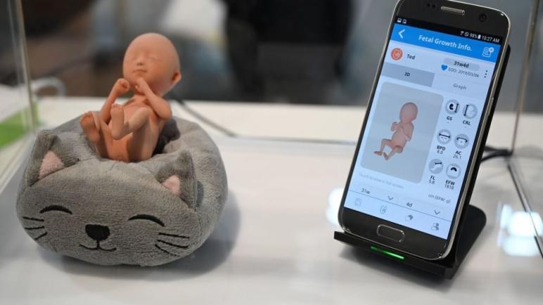 دراسة: نوم الحوامل أكثر من 9 ساعات يهدد حياة الجنين